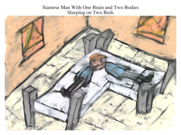 Siamese Man With One Brain and Two Bodies Sleeping on Two Beds