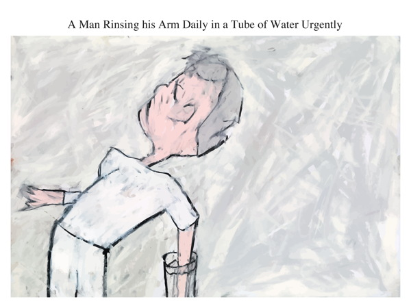 A Man Rinsing his Arm Daily in a Tube of Water Urgently