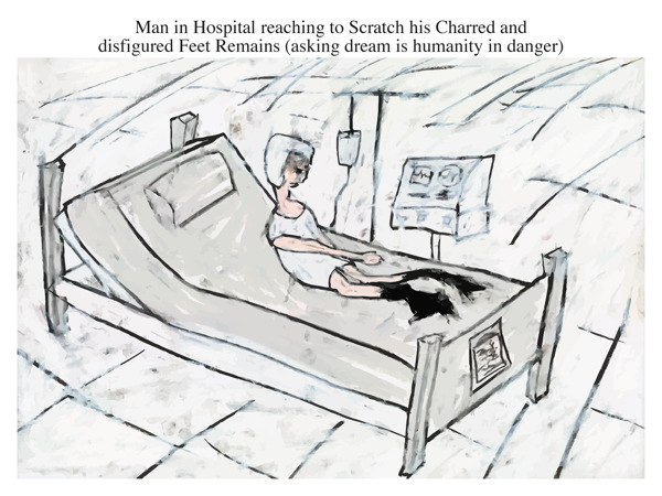 Man in Hospital reaching to Scratch his Charred and disfigured Feet Remains (asking dream is humanity in danger)