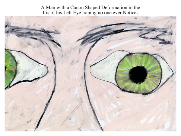 A Man with a Canon Shaped Deformation in the Iris of his Left Eye hoping no one ever Notices